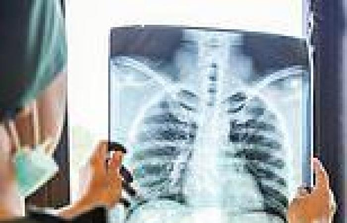 Australian teenager died from tuberculosis so advanced it was only seen in 3rd ...