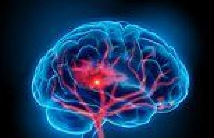 People display tell-tale signs of a looming stroke up to 10 YEARS before it ...