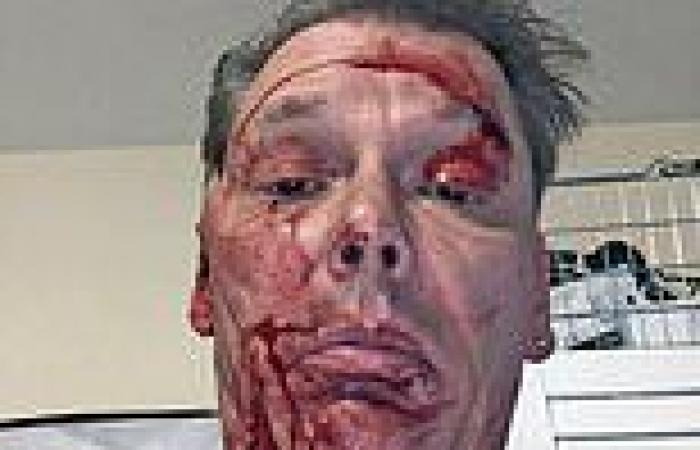 Man, 55, reveals horrific injuries at the hands of 'controlling' ex who was ...
