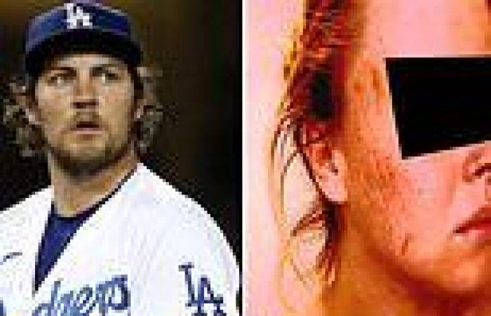 La Dodger Trevor Bauer appeared in court with the woman who claims he assaulted ...