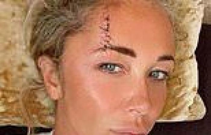 Atomic Kitten's Jenny Frost rushed to hospital as she smashes her head on a ...