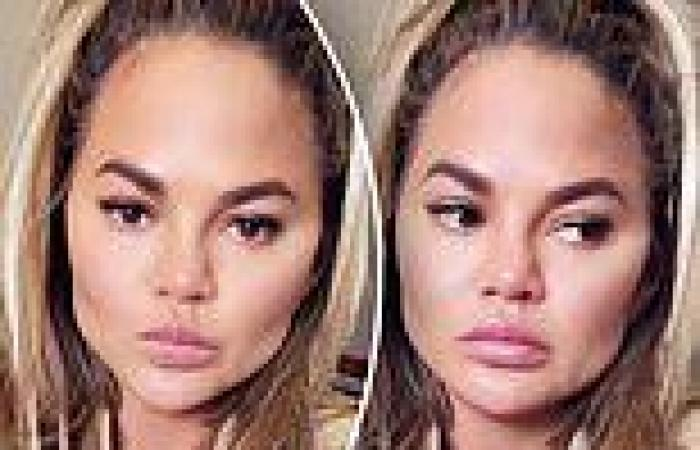 Chrissy Teigen admits she had fat removed from her face in candid chat about ...