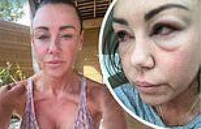 Michelle Heaton, 42, radiates health in stunning snap
