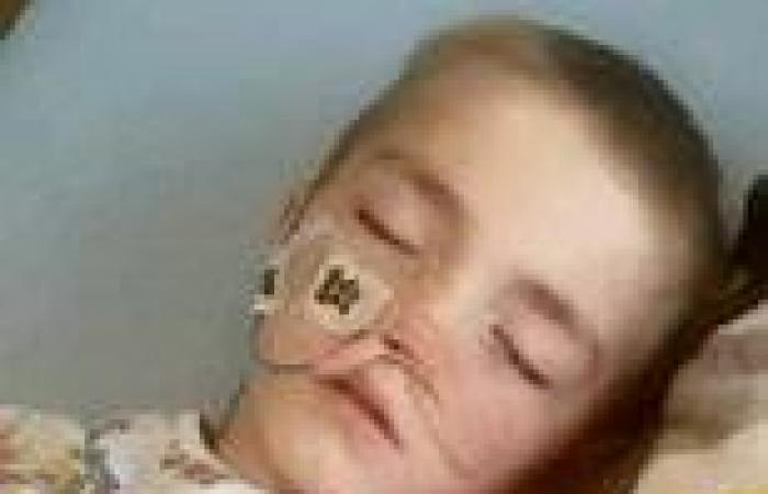 Schoolboy is left with holes in his bowel after swallowing six magnetic toys